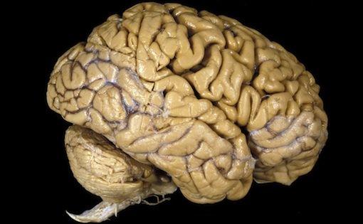 Brain Myths