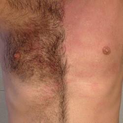 men's hair waxing, chest