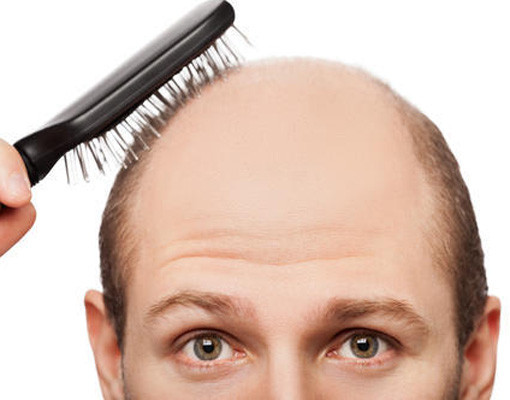 5 Hair-Loss Supplements For Balding Men