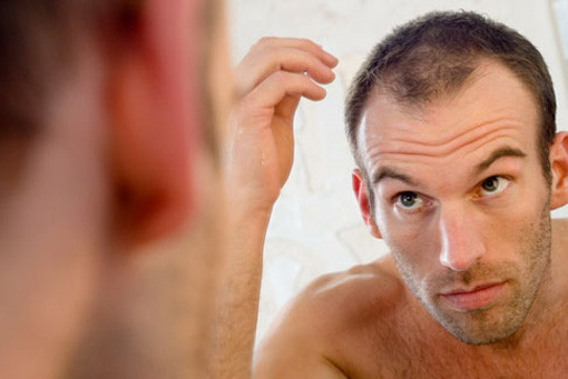 hairstyle tips for guys with thinning hair