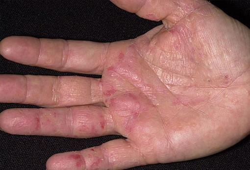 ECZEMA hands skin problems for men