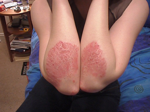 PSORIASIS skin problems for guys
