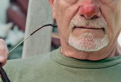 rosacea-skin-diseases-men-should-know-