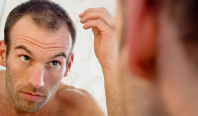 The Best Hairstyles For Balding Men - Modern Man