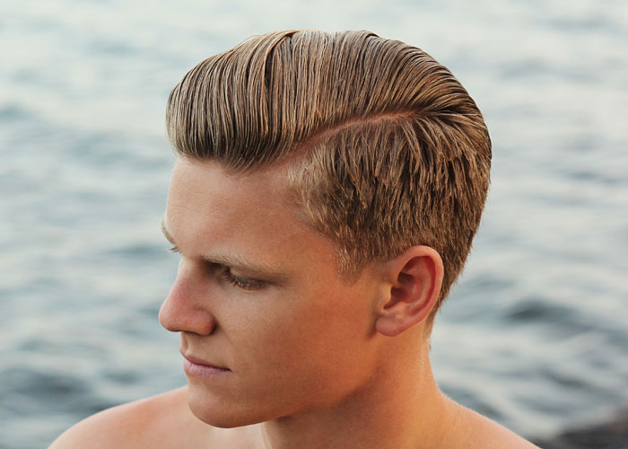 5 Receding Hairline Treatment Options